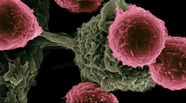Ovarian cancer cells as seen through a microscope
